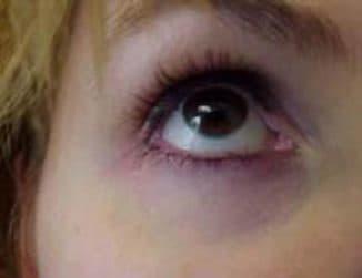 крем от синяков под глазами, лучший крем , для мужчин, для женщин, в домашних условиях, в аптеке