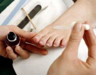 Лоцерил лак для ногтей
