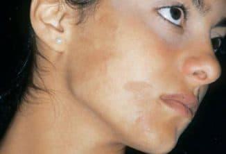Отбеливающие маски для лица от пигментных пятен