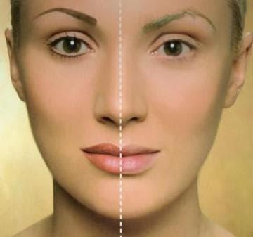 Мезотерапия или биоревитализация советы косметологов