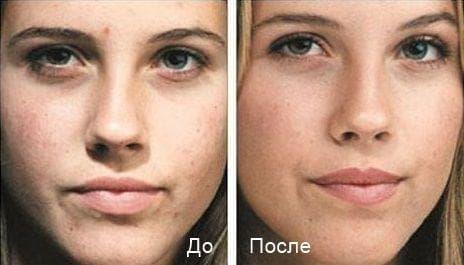 Алмазная шлифовка лица