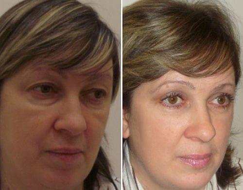 Фото клиентов до и после.