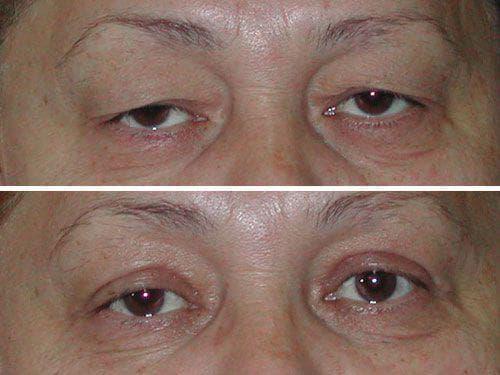 Фото пациентов до и после