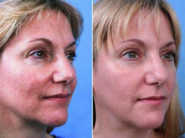 Фото клиентов до процедуры и после