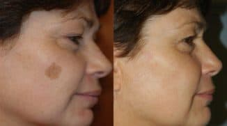 Удаление пигментации на лице лазером