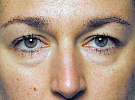 Мешки под глазами причины и лечение