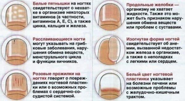 Ребристые ногти на руках причины