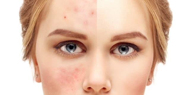 Некомедогенная косметика для проблемной кожи лица