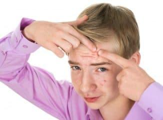 крем от прыщей на лице для подростков