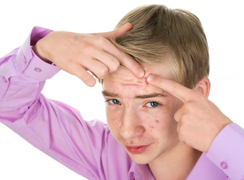Лучшие средства от подростковых прыщей на лице