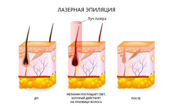 Лазерная эпиляция сколько процедур нужно для полного