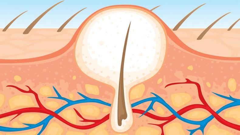 Вросшие волосы после бритья: как избавиться и почему волосы врастают в кожу на ногах, лице и зоне бикини