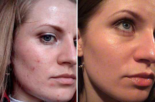 Маска для лица с димексидом