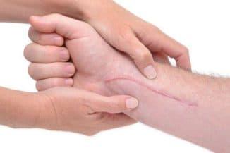 Как избавиться от шрамов в домашних условиях