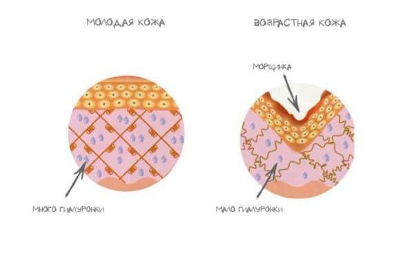 убрать мимические морщины на лбу уколы отзывы