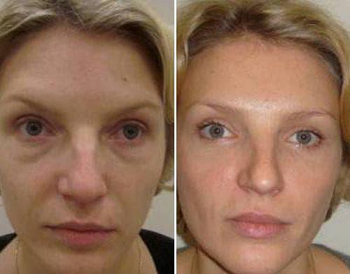 Фото клиентов до и после