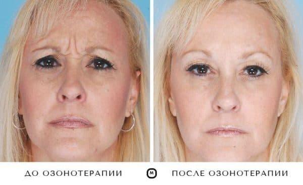 Озонотерапия польза и вред