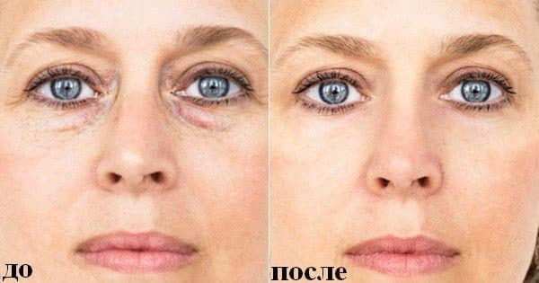 Причины мешков под глазами у женщин