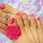 Причины и лечение ломкости ногтей на ногах