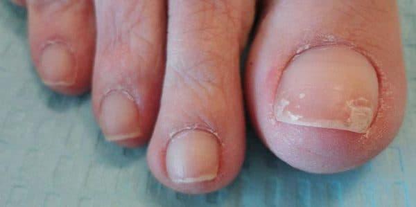 Почему ломаются ногти на ногах, слоятся, крошатся, причины, что делать, как укрепить народными средствами, дома, в салоне, аптечные препараты