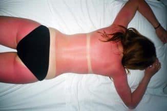 Что делать, если сильно загорел на солнце