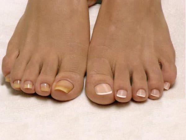 Мазь антибиотик от грибка на ногах